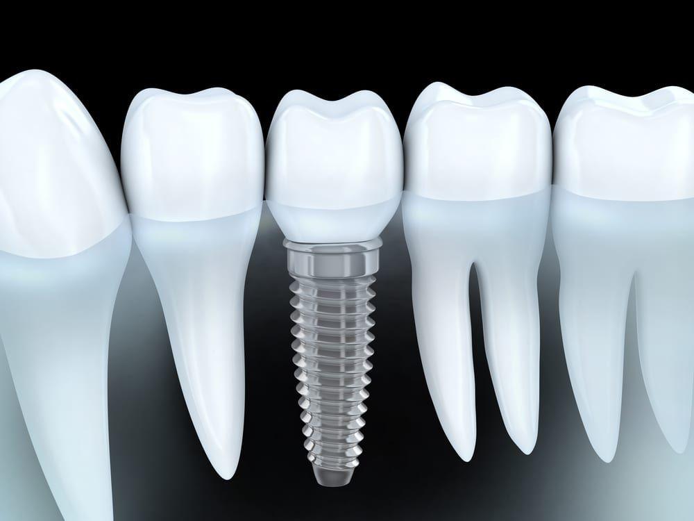 Dental Implant Image 01