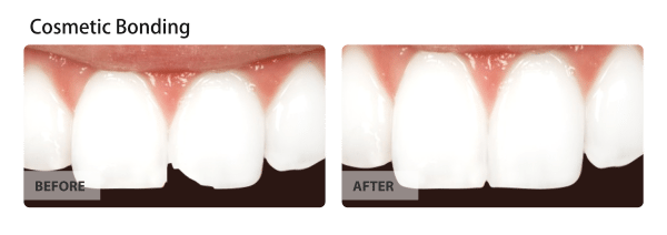 Cosmetic Bonding Before and After Images 01