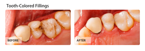 Tooth-Colored Fillings Before and After Images 02