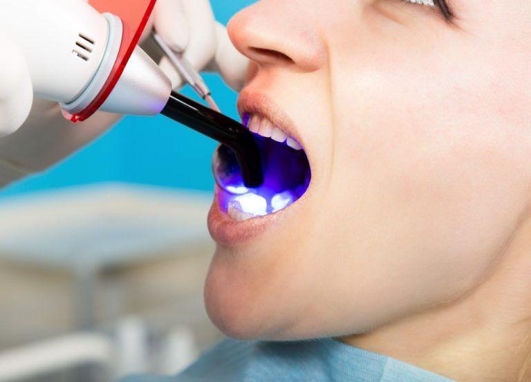 A Patient At Laser Gum Treatment 07